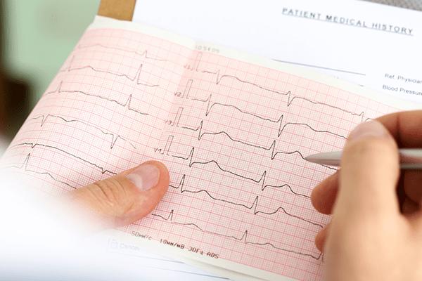 نوار قلب چه چیزی را نشان می دهد؟