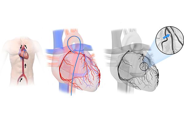 آنژیوگرافی قلب چه زمانی انجام می شود؟