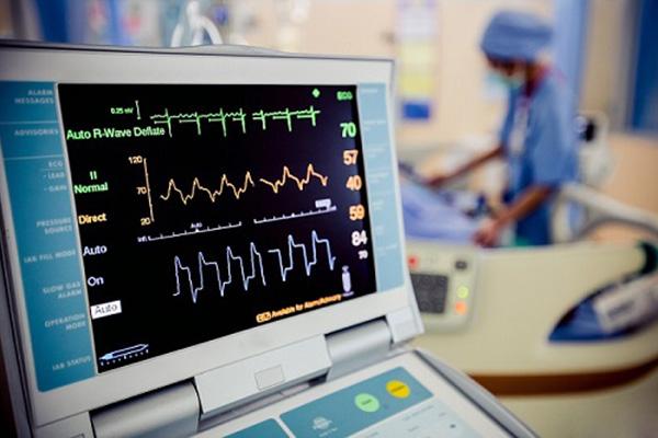تست EKG