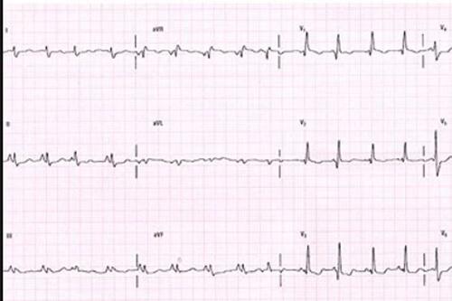 نوار قلب مریض 1
