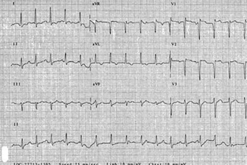 نوار قلب مریض2
