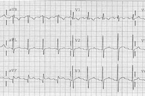 نوار قلب مریض 3