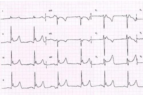 نوار قلب مریض 4