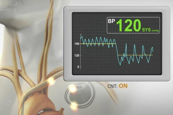 فشار خون سیستولیک