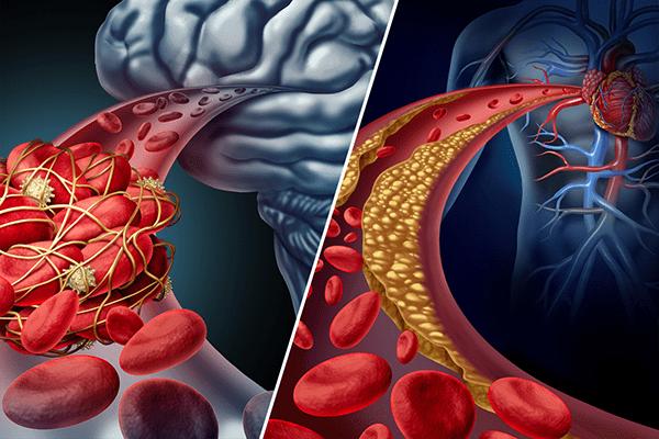 علائم سکته مغزی و حمله قلبی چیست؟