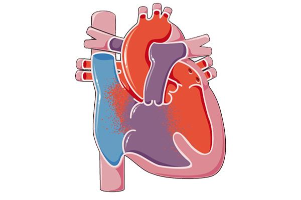 علائم بیماری قلبی مادرزادی چیست؟