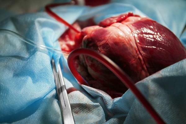درمان گرفتگی عروق قلب با جراحی