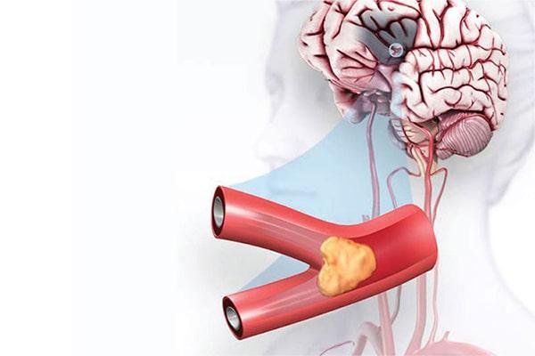 عوامل خطرزا در بروز علائم سکته مغزی
