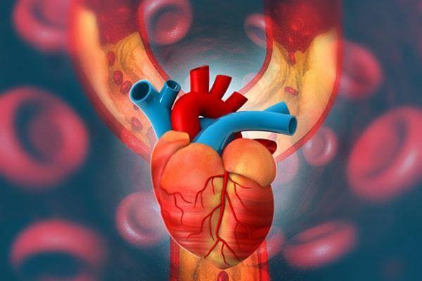 کمک به بیماری عروق کرونر قلبی