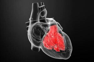 بزرگ شدن قلب یا کاردیومگالی چیست؟