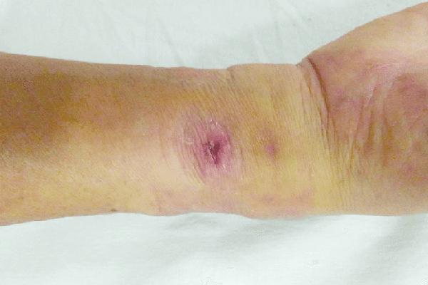 خطرات آنژیوگرافی قلب از طریق دست