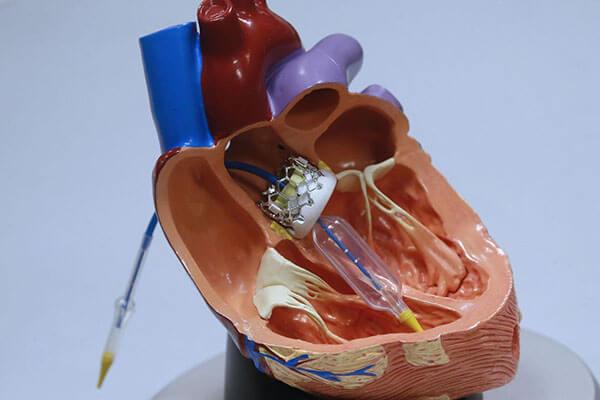 تعویض دریچه قلب به چه دلیل انجام می شود؟