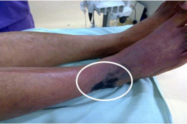 خطرات آنژیوگرافی از طریق پا و کشاله ران