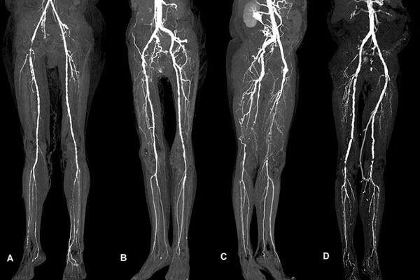 آنژیوگرافی از طریق پا چیست؟