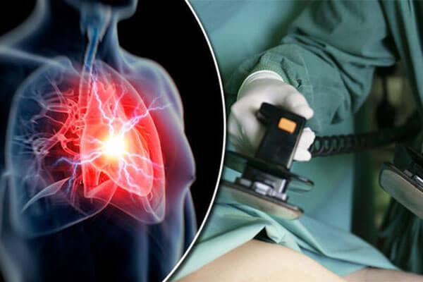 تشخیص نارسایی احتقانی قلب