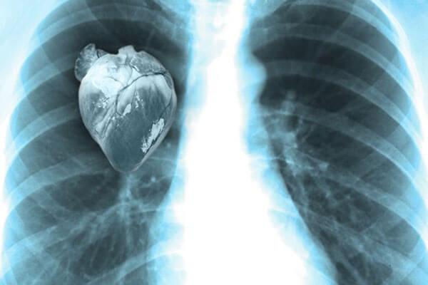 خطر مرگ بزرگ شدن قلب