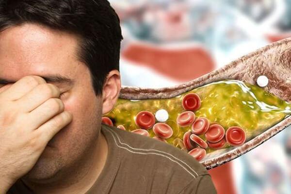 راه های کاهش کلسترول بد