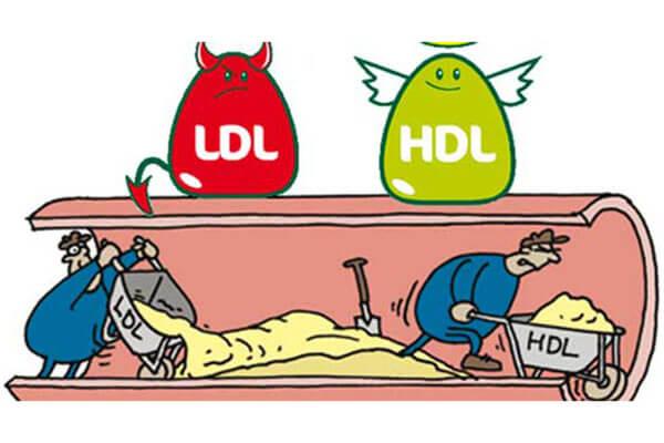 LDL کلسترول