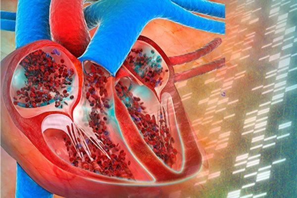 علت سکته قلبی خفیف چیست؟